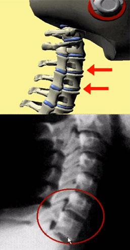 Защемление шейного нерва